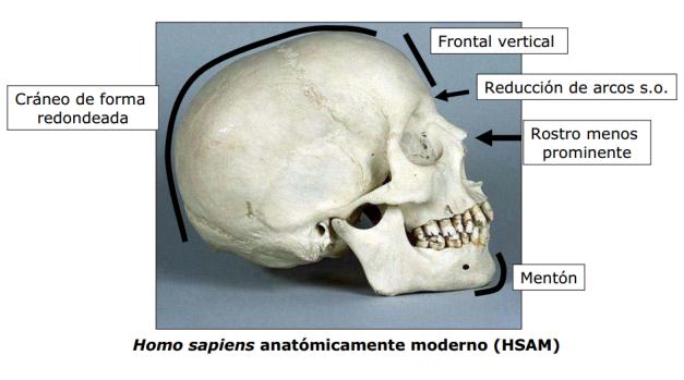 Algunas características craneales del HAM