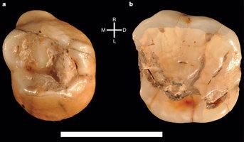 Hallazgos dentales en Apulia