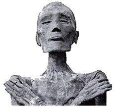 Imagen que muestra la momia de Ramsés V, que murió de viruela